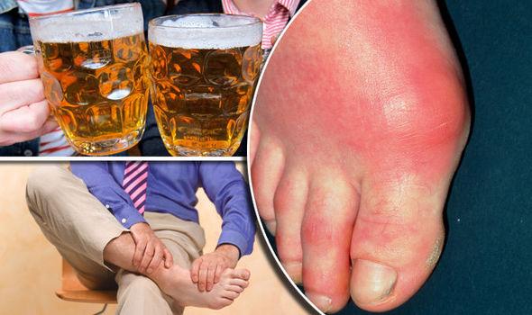 gota enfermedad y alcohol