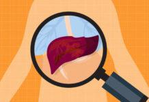 síntomas de hígado enfermo por alcohol
