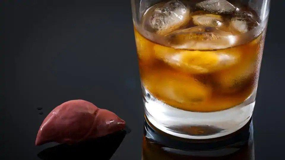 cirrosis hepatica alcoholica fase terminal